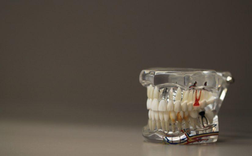 Zła metoda żywienia się to większe niedostatki w zębach oraz dodatkowo ich utratę